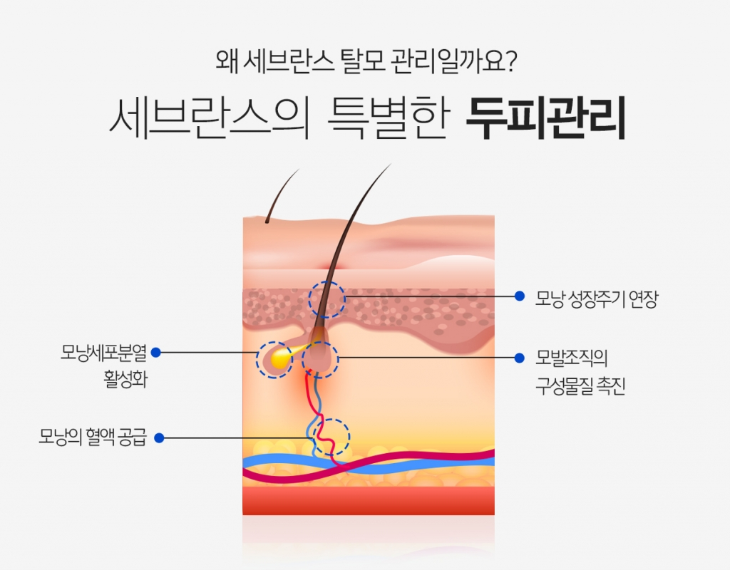 왜 세브란스 탈모관리일까요? 세브란스의 특별한 두피관리 모낭세포분열 활성화 모낭의 혈액공급 모낭 성장주기 연장 모발조직의 구성물질 촉진